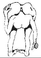 Cranial Rectitus